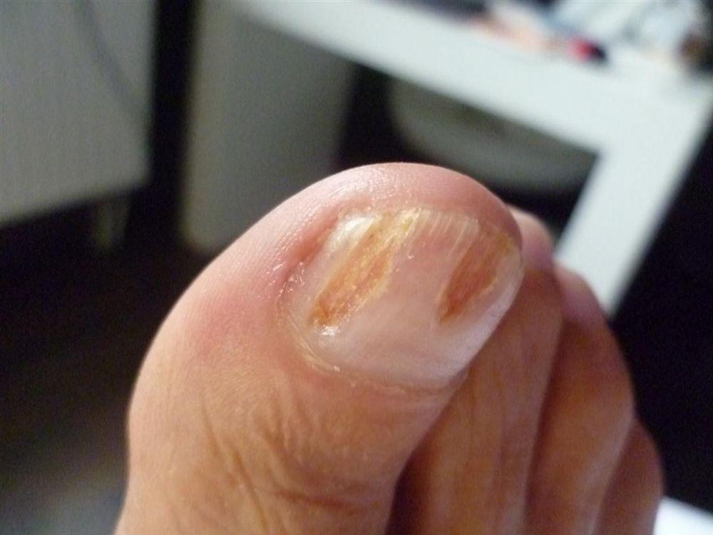 Oczyszczenie paznokcia grzybiczego 1 (2)