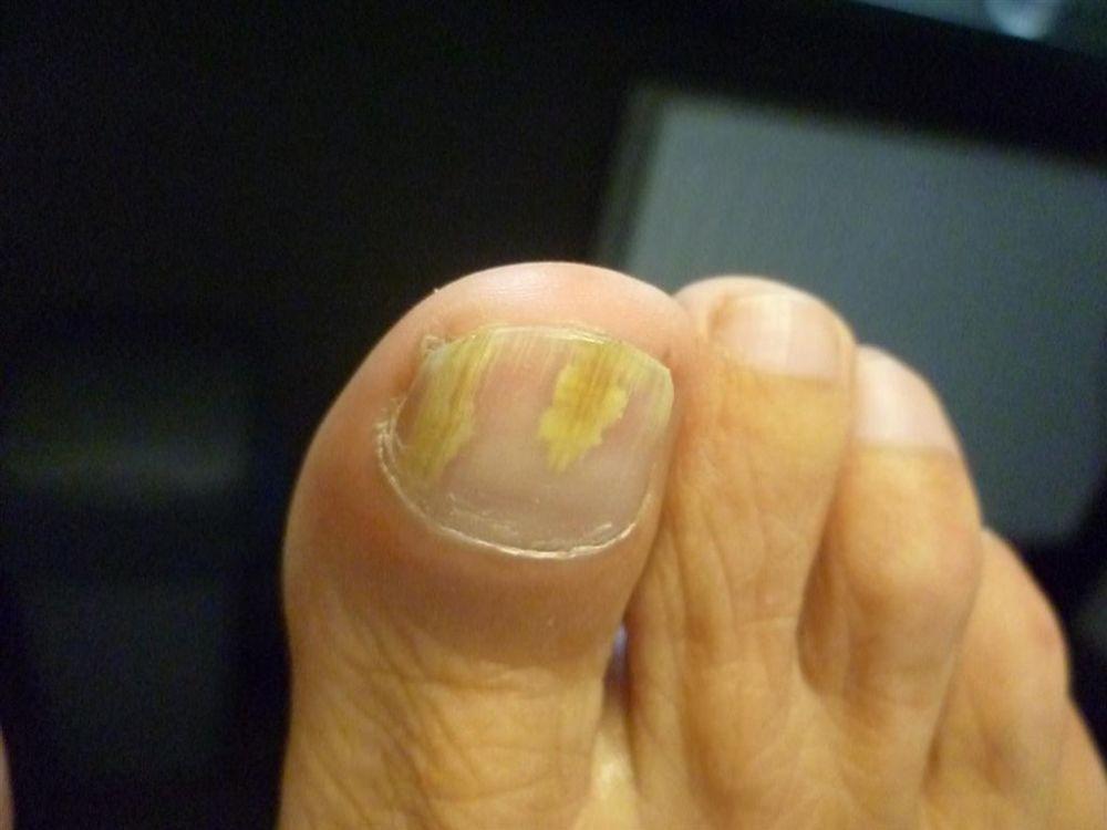 Oczyszczenie paznokcia grzybiczego 1
