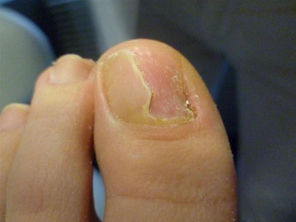 Oczyszczenie paznokcia grzybiczego 2 (1)